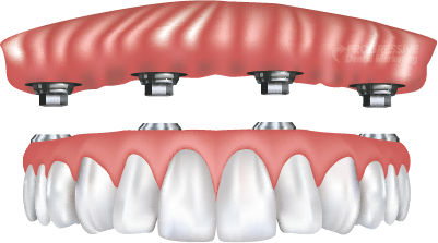 tooth implant dentist in tampa